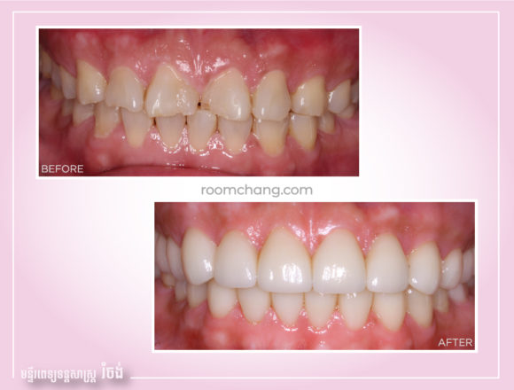 Dental Crown-Emax Ceramic