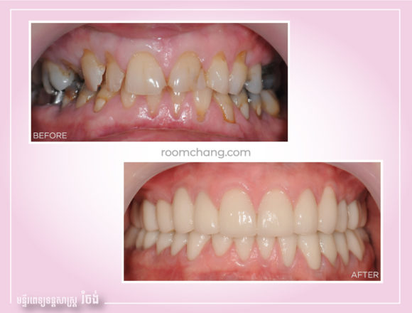 Full Mouth Reconstruction-Dental Implant on Crown