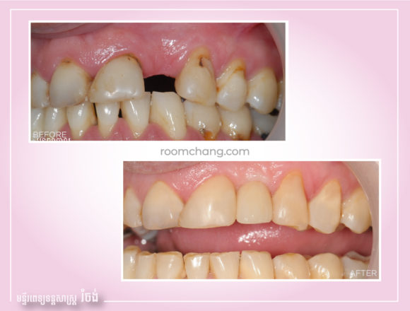 Dental Implant on Crown