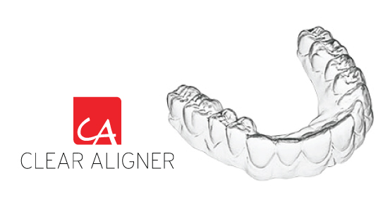 Clear-Aligner_icon