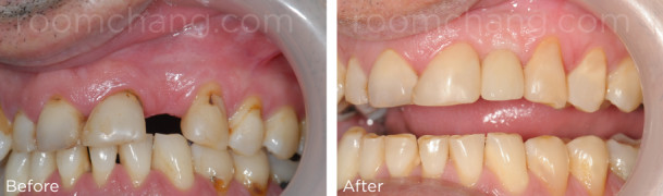 Dental Implant with Crown Roomchang Dental