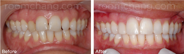 Filling_Veneer_Crown_Roomchang-Dental