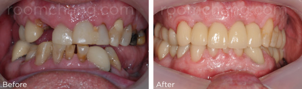 Full mouth reconstruction_Dental crown & implant_Roomchang Dental