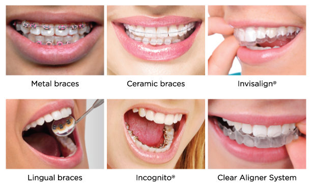 Type-of-Braces_EN