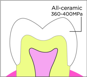 All Ceramic Crown (E-Max)