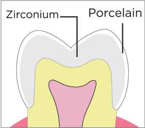 Zirconium (All Ceramic Crown)