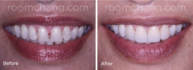 roomchang_cosmetic-dentistry_dental-crown