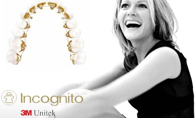 Incognito 3