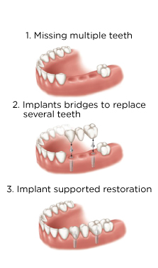 Ankylos-Implant-for-bridges