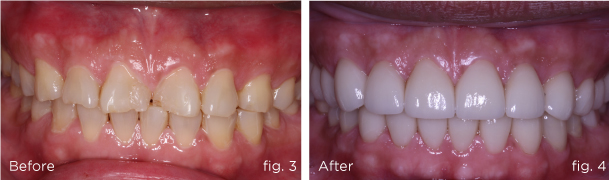 Before-&-After-dental-implant-and-crown-1.0-@roomchang-dental-hospital