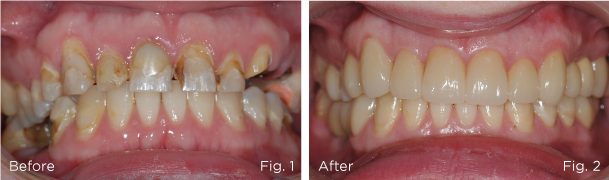 Before-&-after-dental-full-mouth-reconstruction_implant-&-crown-@roomchang-dental-hospital