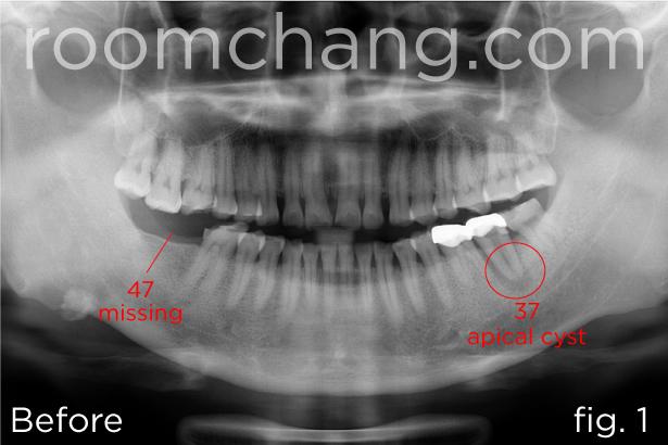 Implant & Crown 1.1