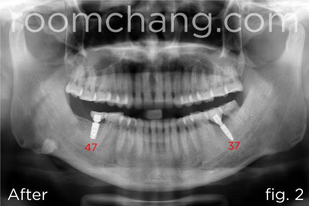 Implant & Crown 1.2