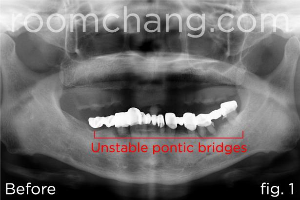 Implant-Bridges-2.1