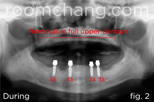 Implant-Bridges-2.2