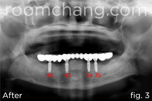 Implant-Bridges-2.3