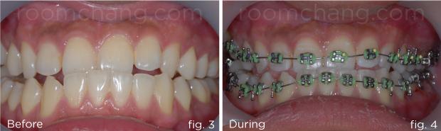 Orthodontic-3.3-&-3.4