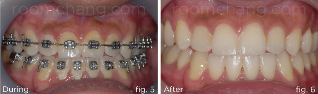 Orthodontic-3.5-&-3.6