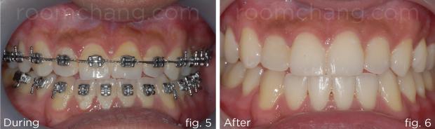 Orthodontic-3.5-&-3.6