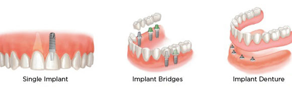 Implant Supported Over-dentures & Bridges