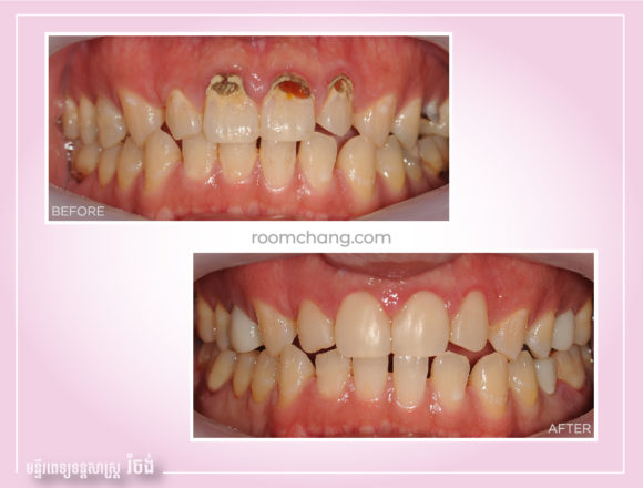 Cosmetic Dentistry-Teeth Filling @roomchang
