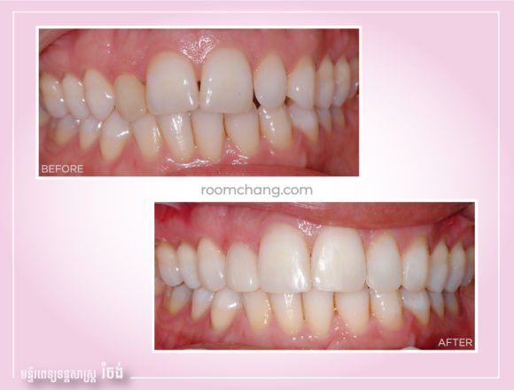 Cosmetic Dentistry-Teeth Whitening @roomchang