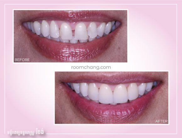 Cosmetic Dentistry-Dental Veneer @roomchang